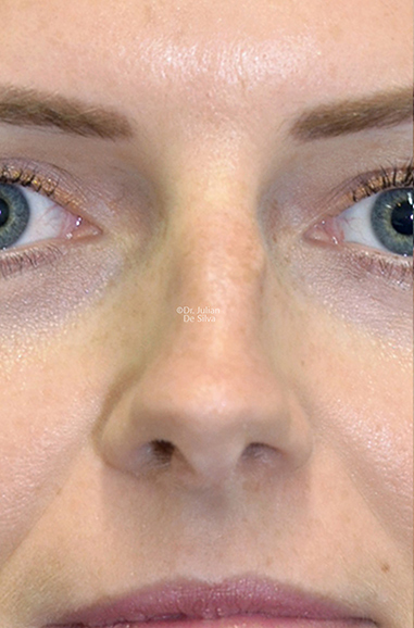 Female face, before Nose Re-Shaping treatment, front view, patient 111