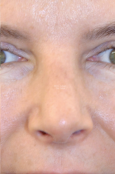 Female face, after Nose Re-Shaping treatment, front view, patient 112