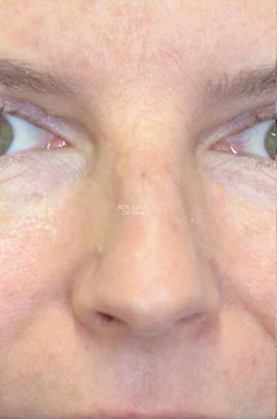 Female face, before Nose Re-Shaping treatment, front view, patient 112
