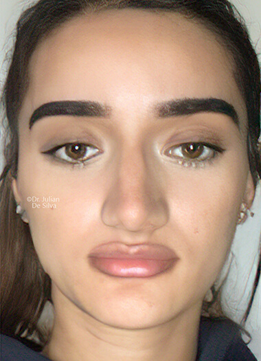 Female face, after Nose Re-Shaping treatment, front view, patient 113