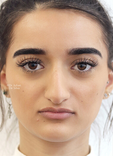 Female face, before Nose Re-Shaping treatment, front view, patient 113