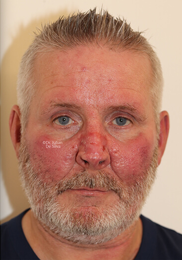 Male face, after Nose Re-Shaping treatment, front view, patient 114