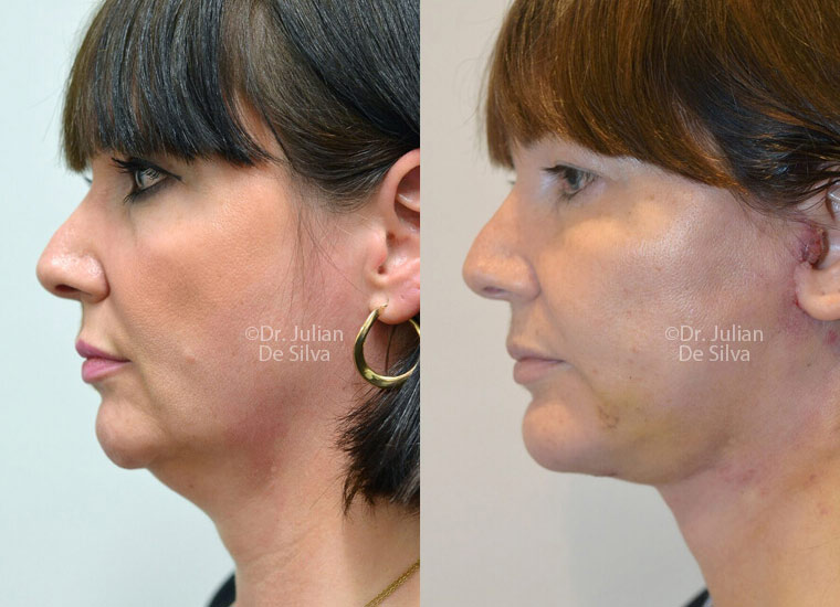 Woman's face, before/after Facelift and NeckLift treatment, side view, patient 2