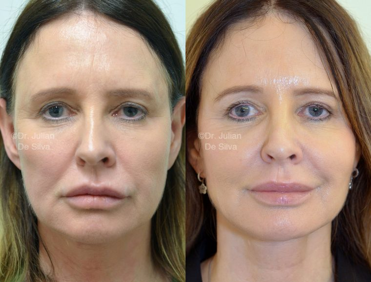 Woman's face, before/after Facelift and NeckLift treatment, front view, patient 3