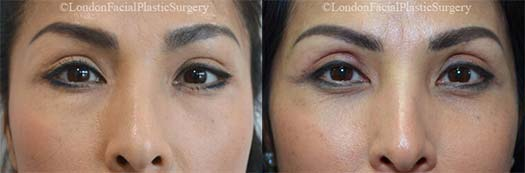Woman's face, before and after Upper Eyelid (Blepharoplasty) treatment, front view