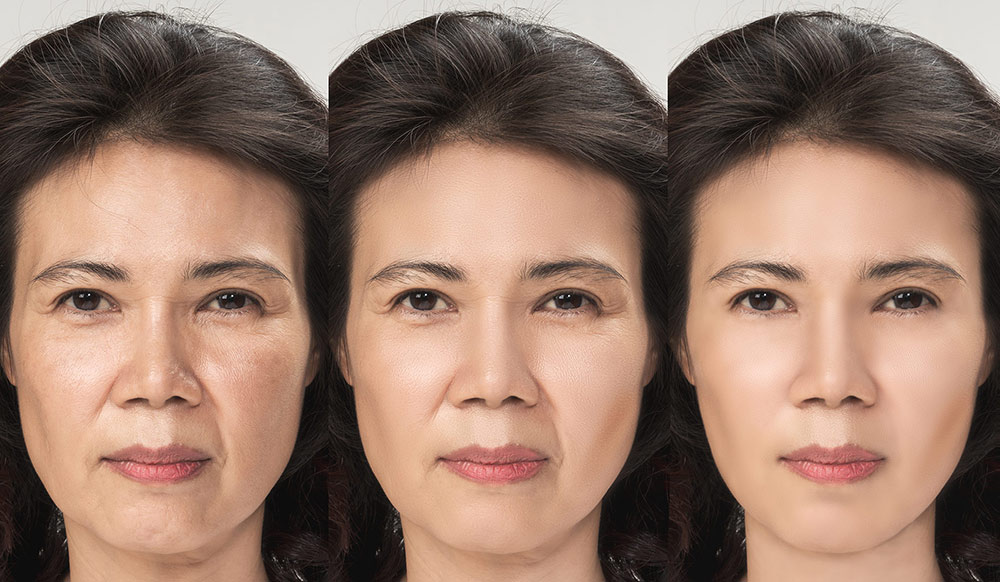 Facelift Surgery Step-By-Step