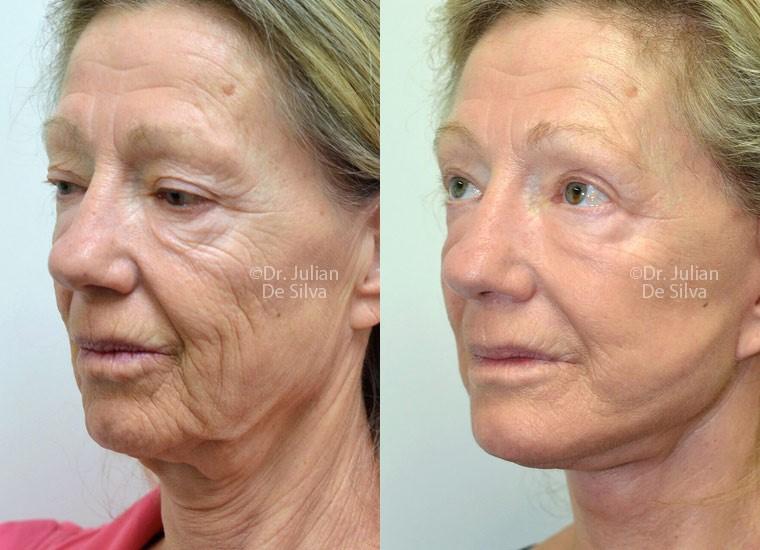 types of facelift procedures