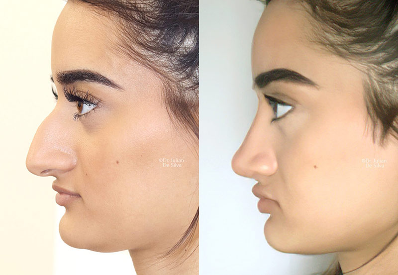 Woman's face, Before and After Rhinoplasty recovery, side view