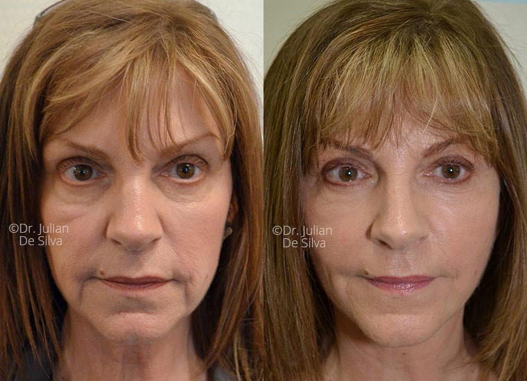 Face Lift - before and after