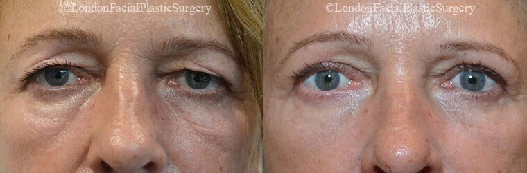 Under eye wrinkles - before and after treatment