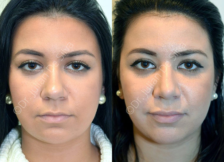 Woman's face, Before and After nose job, front view, patient 2