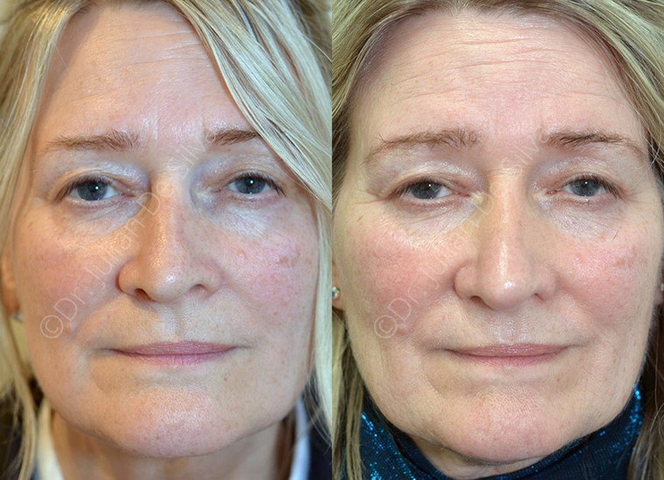 Woman's face, Before and After scars treatment, front view, patient 3