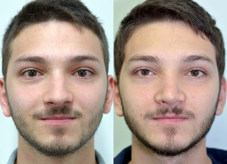 Male face, Before and After nose job, front view, patient 4