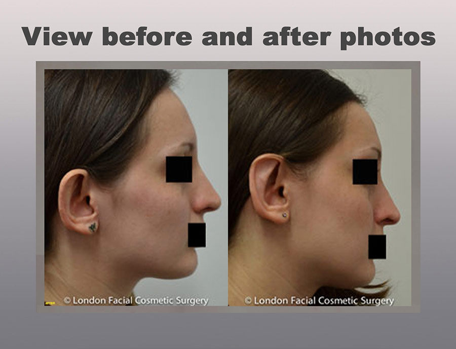 Ear Cosmetic Surgery