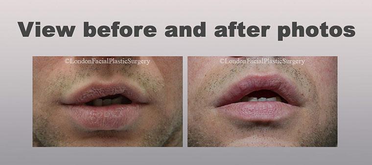 Lip Augmentation (Cheiloplasty)