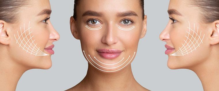 Woman's face, deep plane facelift brings natural