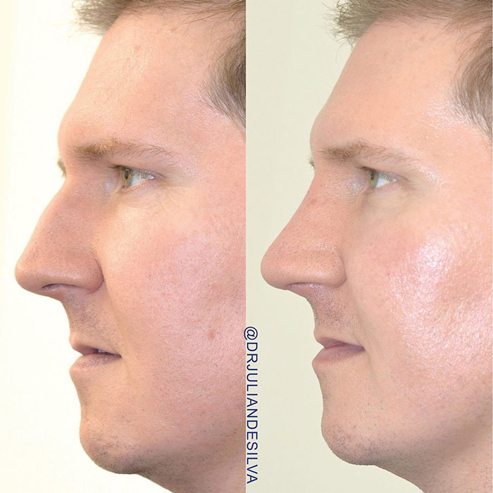 Male face, before and after nose surgery treatment, side view, patient 1