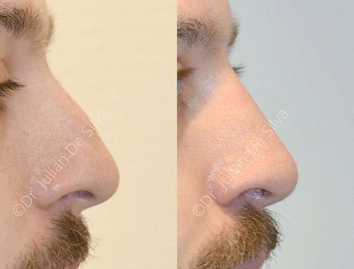 Male face, before and after nose surgery treatment, side view, patient 2