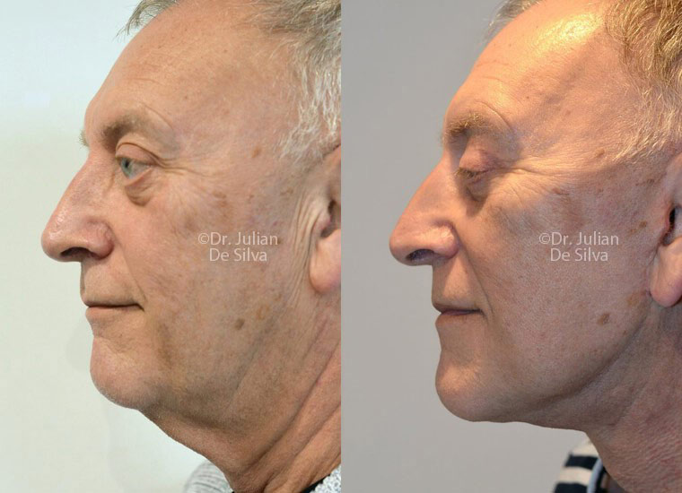 Male face, before and after turkey neck treatment, side view patient 3