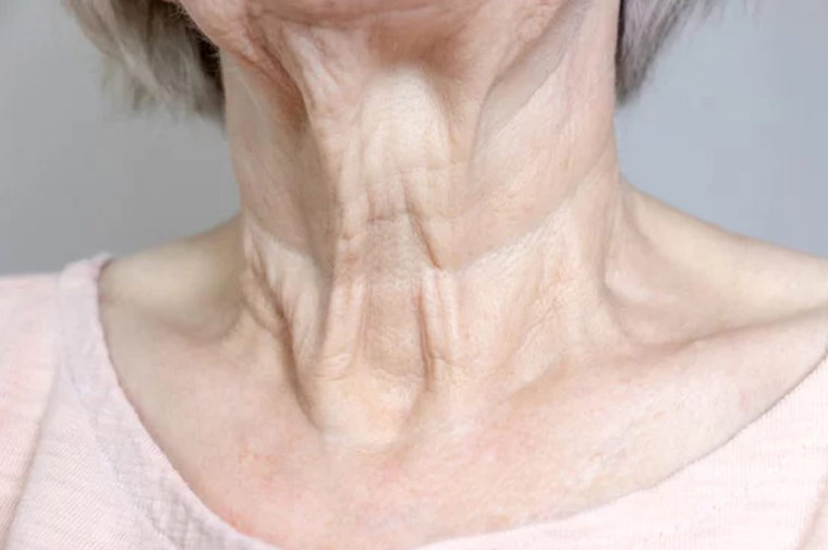Female neck - What Is a Turkey Neck?