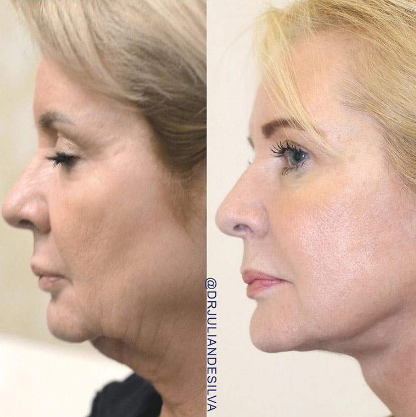 Female face, before and after turkey neck treatment, side view patient 1