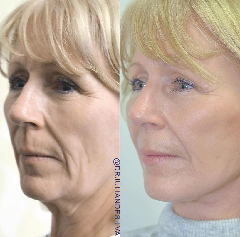 Female face, before and after turkey neck treatment, oblique view patient 2