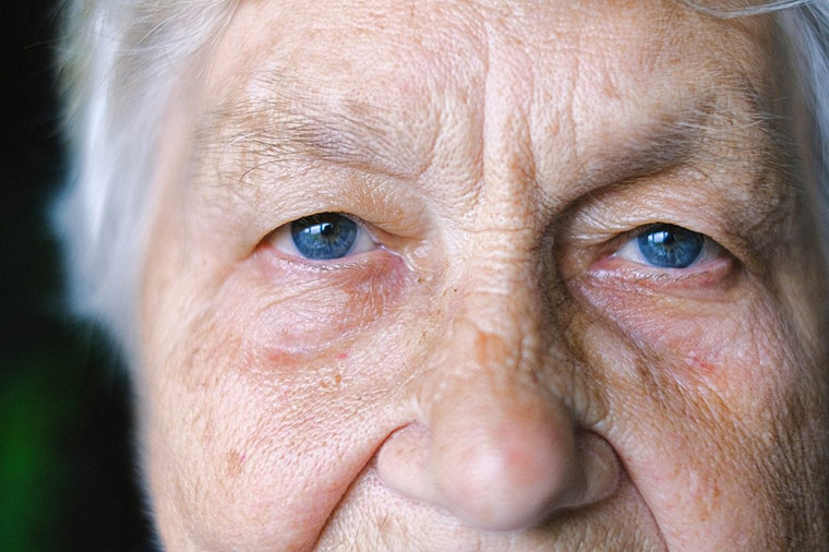 Causes of Eye Bags
