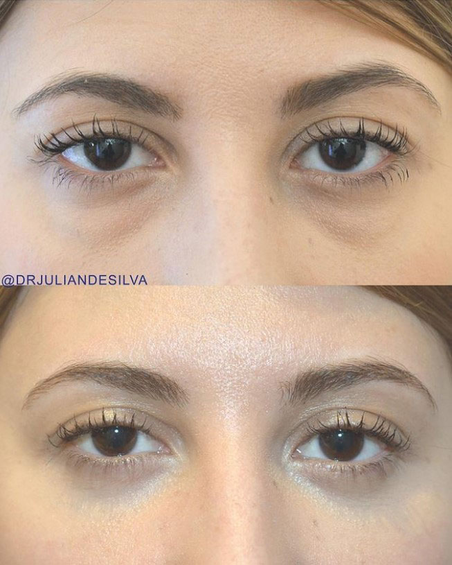 Woman's face, before and after Eye Bag Removal Surgery (Blepharoplasty), front view, patient 1