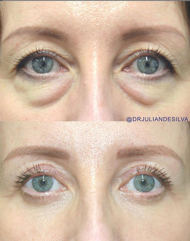 Woman's face, before and after Eye Bag Removal Surgery (Blepharoplasty), front view, patient 2