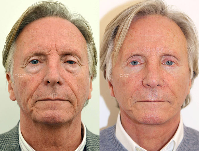 Male face, before and after Deep Plane Facelift treatment, front view, patient 1