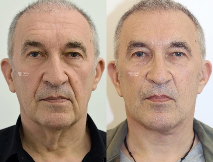 Male face, before and after Deep Plane Facelift treatment, front view, patient 3