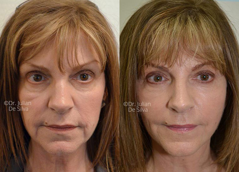 Female face, before and after Deep Plane Facelift treatment, front view, patient 4