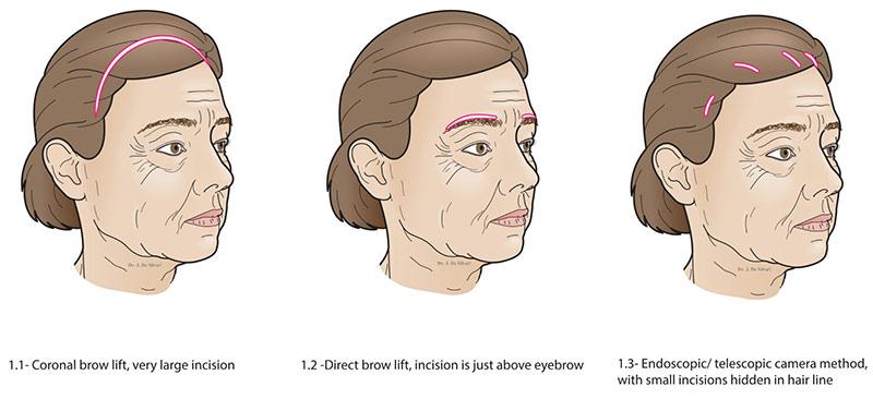 types of eyebrow lifting