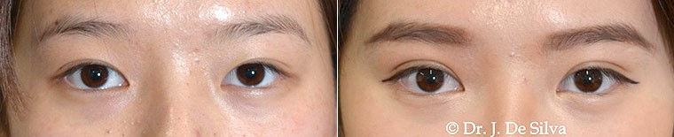 Before and After brow lift - asian patient