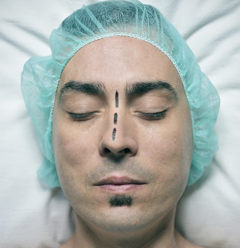 deviated septum treatment stages