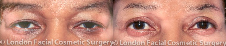 Patient 1 - Before and After blepharoplasty