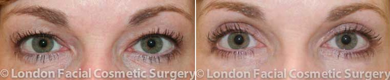 Patient 2 - Before and After complete blepharoplasty