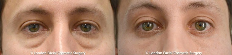 Patient 3 - Before and After lower blepharoplasty