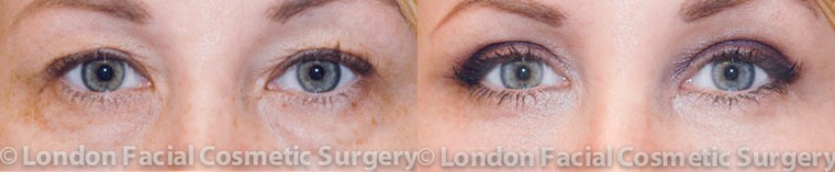 Female eyes, Eyelid Surgery Before and After Photos, front view, patient 1