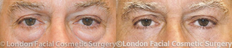 Male eyes, Eyelid Surgery Before and After Photos, front view, patient 2