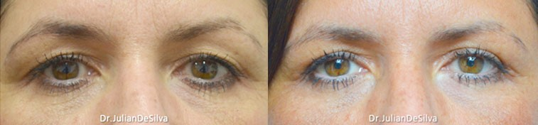 Female eyes, Eyelid Surgery Before and After Photos, front view, patient 3