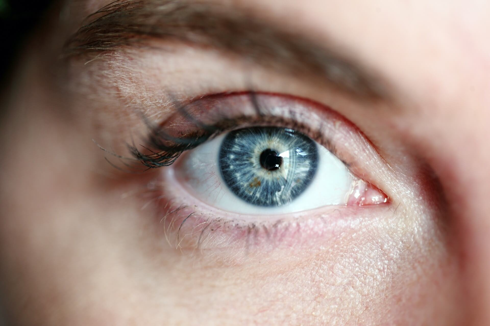 Issues Eye-Lift Surgery Can Solve