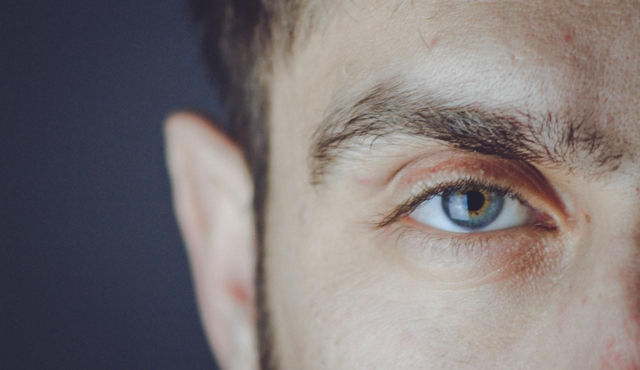 Preparing for Eye-Lift Surgery - male eye