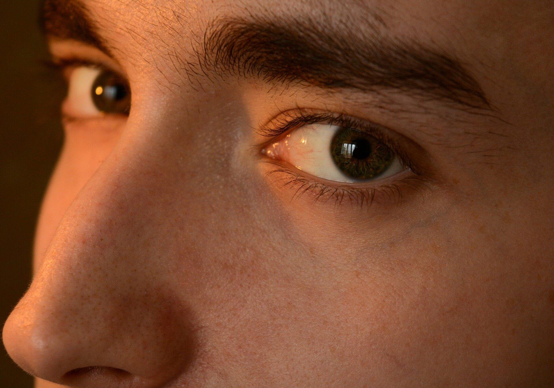 Upper Blepharoplasty - male face