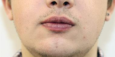 Lip Augmentation & Reduction After 18
