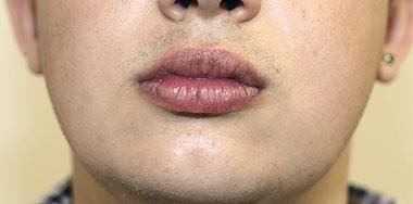 Lip Augmentation & Reduction Before 18